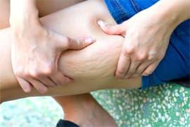 السيلوليت وتراكم الدهون فى الفخذين