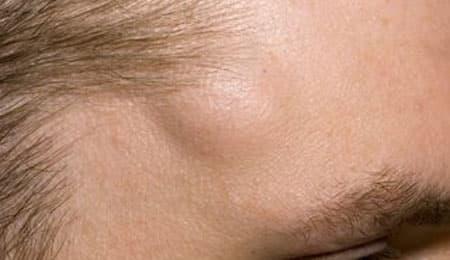 لص رومانسي دمعة الاكياس الدهنية تحت الجلد في الوجه Alterazioni Org