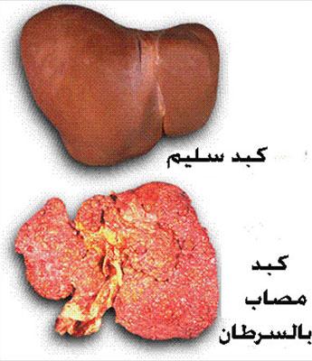 سرطان الكبد الأعراض والعلاج