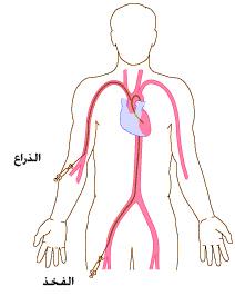 يتم علاج مرض تضيق الصمام الأبهر عن طريق العمليات الجراحية أو القسطرة: